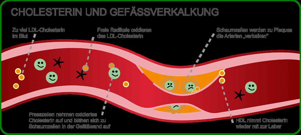 Grafik zur Gefäßverkalkung durch Cholesterin