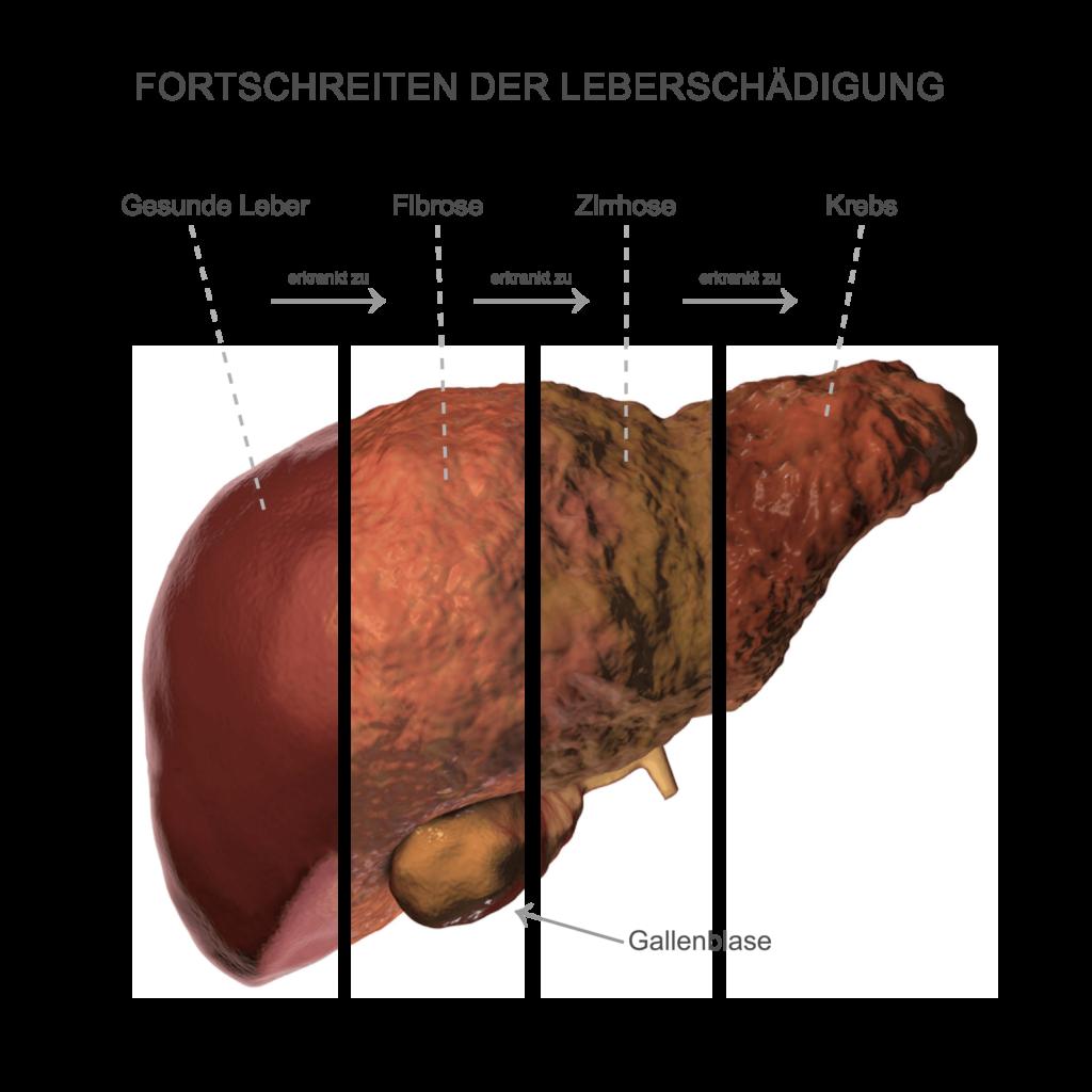 Fortschreiten von Leberschäden: Fibrose kann zur Zirrhose werden und sich schließlich zu Leberkrebs entwickeln