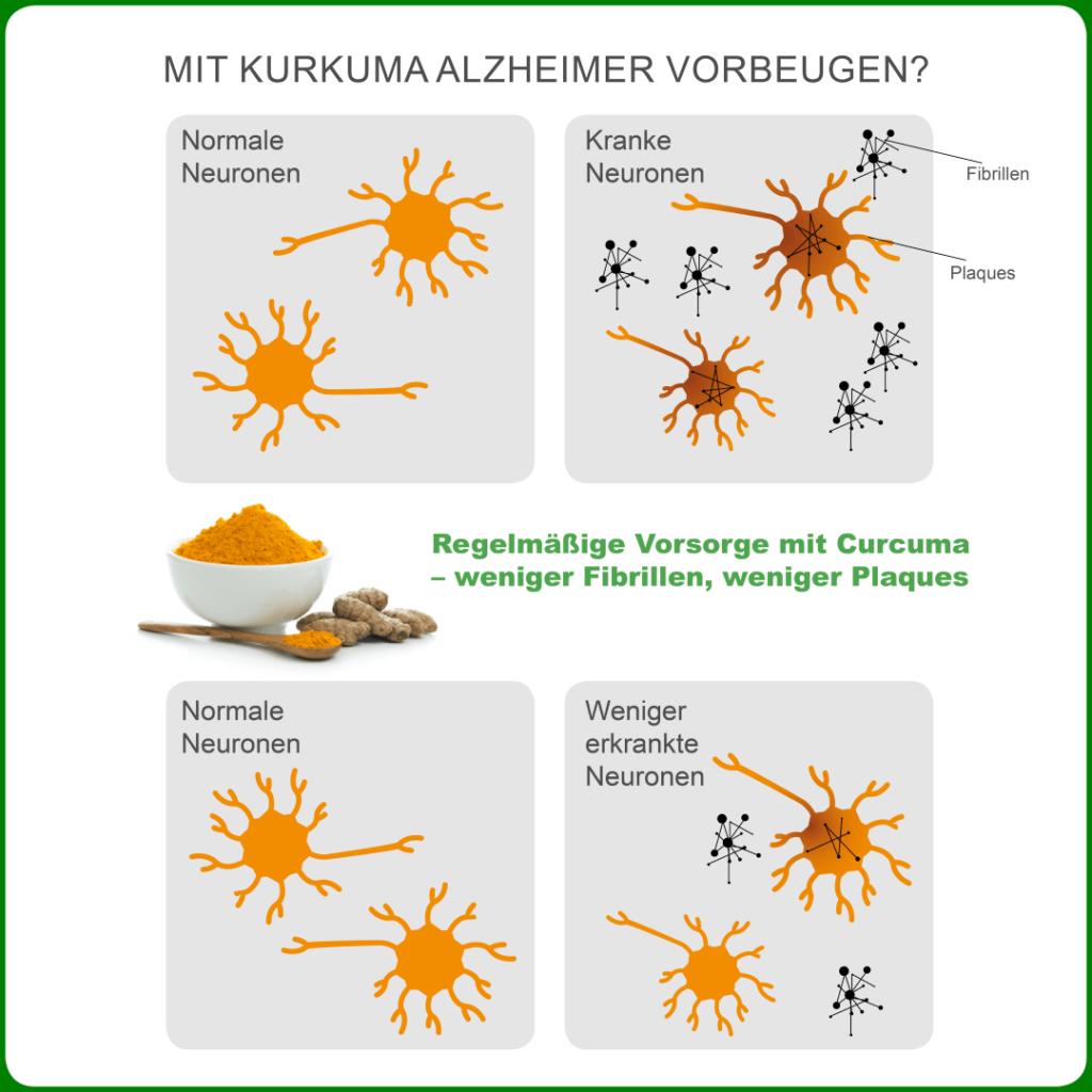 Infografik - Kurkuma wirkt gegen Alzheimer - Fibrillen und Plaque-Ablagerung im Hirn